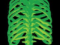 Зеленые ребра